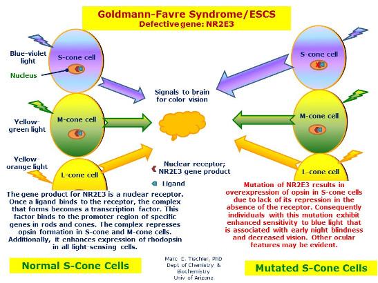 Síndrome de Goldmann-Favre