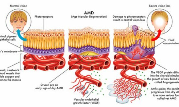 Neovascularización Coroidea