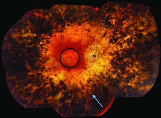 ¿Qué es la retinosis pigmentaria?