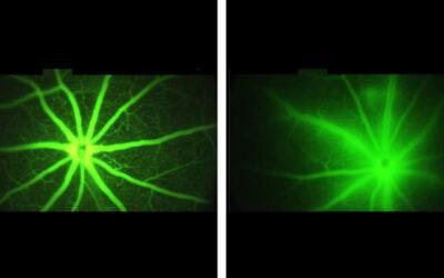 AXT107 evita que los vasos sanguíneos anormales en el ojo pierdan líquidos que bloquean la visión