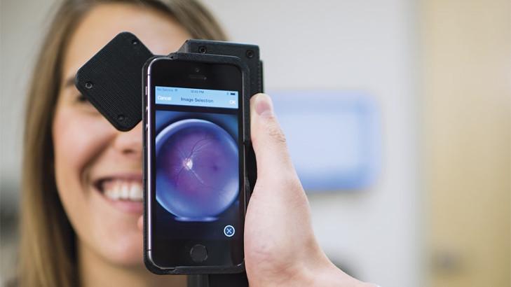 Detección precoz de retinopatía diabética con inteligencia artificial en teléfonos inteligentes