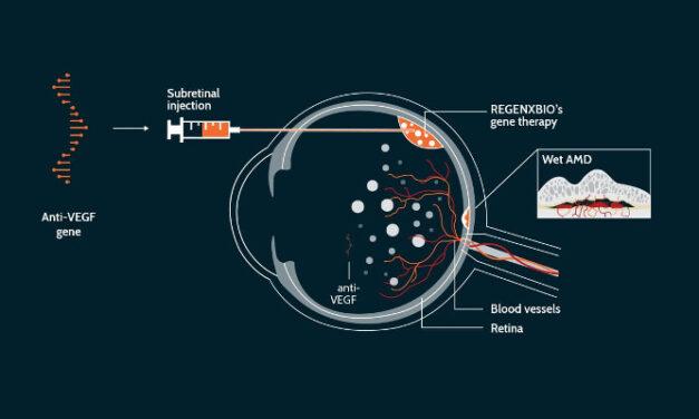 Ensayos de terapia génica para DMAE húmeda
