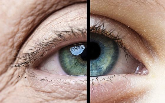 El envejecimiento de nuestros ojos