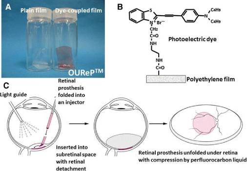 Prótesis para la estimulación retiniana