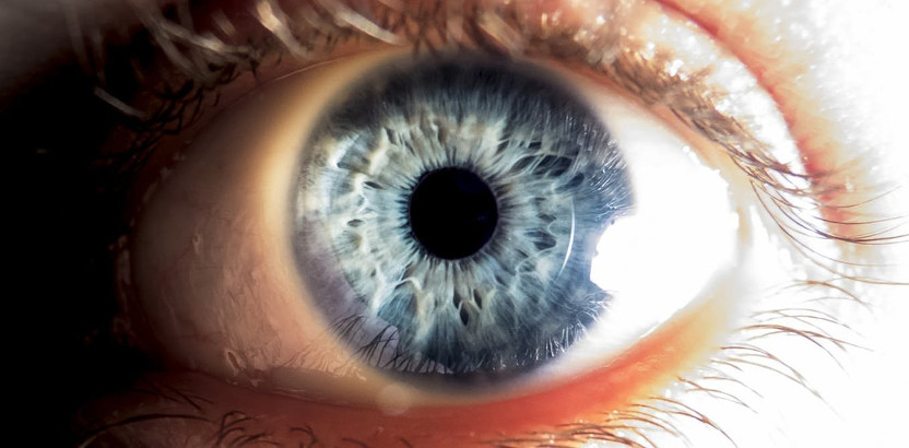 Distrofia macular viteliforme de Best