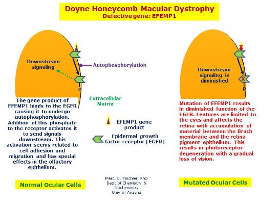 Distrofia retiniana en panal de Doyne