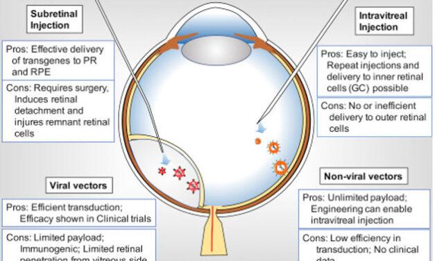 AAV8-RGPR para Retinosis Pigmentaria ligada al cromosoma X