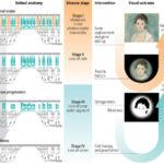 Actualidad de las terapias para tratar la degeneración retiniana