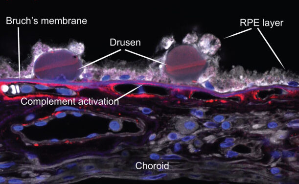 El trasplante de láminas retinianas derivadas de células madre embrionarias humanas mejora la visión en ratas inmunodeficientes con degeneración retiniana