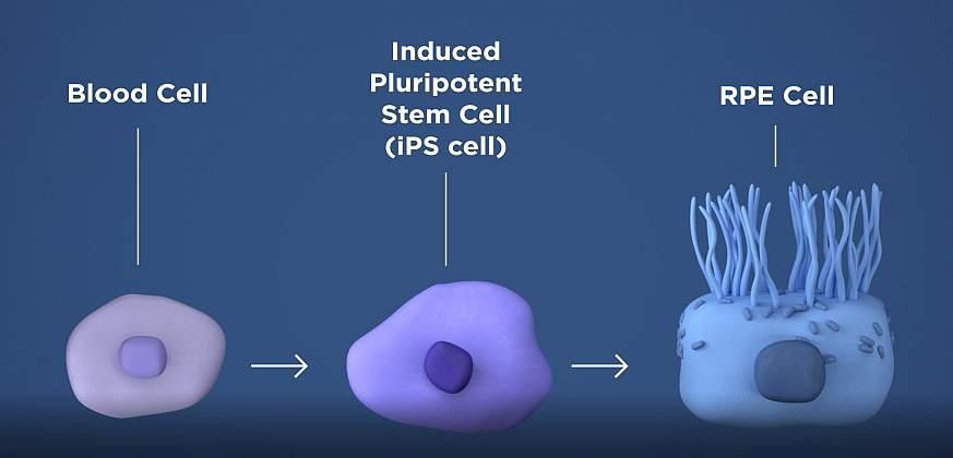 El Departamento de Salud y Servicios Sociales de los Estados Unidos lanza el primer ensayo clínico con células madre para reemplazar las células muertas en la retina