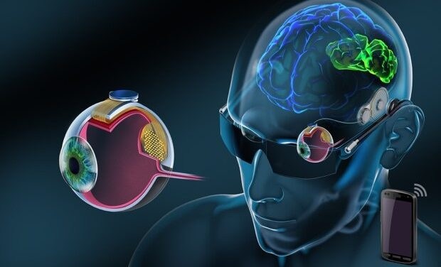 Nueva retina artificial BVT Bionic Eye