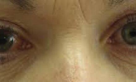 Aviso para afectados por patologías oculares crónicas