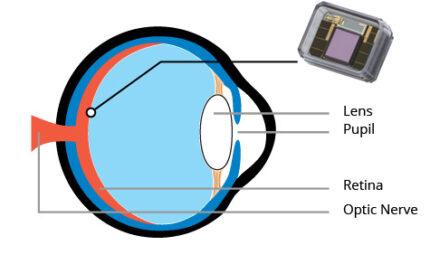 Nano Retina anuncia resultados preliminares para el primer implante en humanos de su dispositivo de retina artificial NR600
