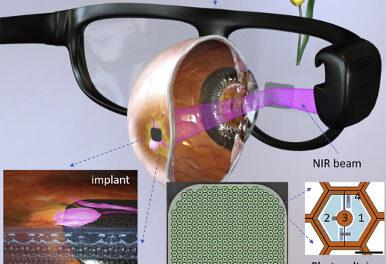 Restauración fotovoltaica de visión central en degeneración macular atrófica asociada a la edad