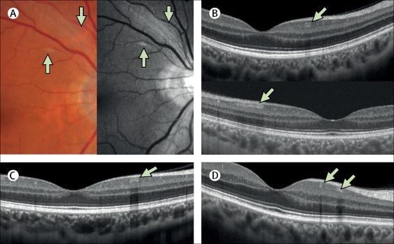 Retina y pacientes con COVID-19
