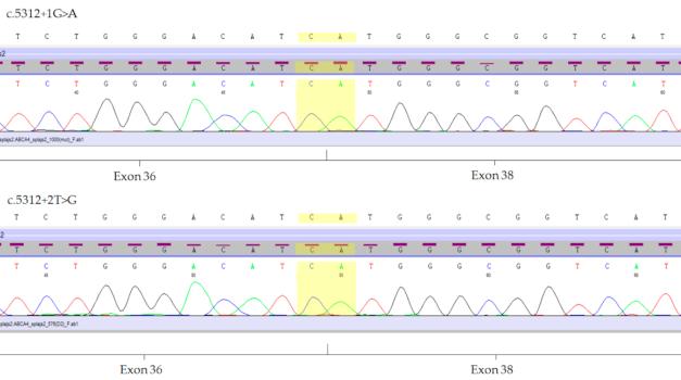Análisis molecular de las mutaciones del gen ABCA4 en pacientes con la enfermedad de Stargardt usando folículos de pelo humano
