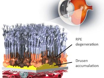 Lineage Cell Therapeutics informa de los resultados del estudio OpRegen