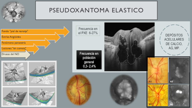 Infografía de PSEUDOXANTOMA ELASTICO 11