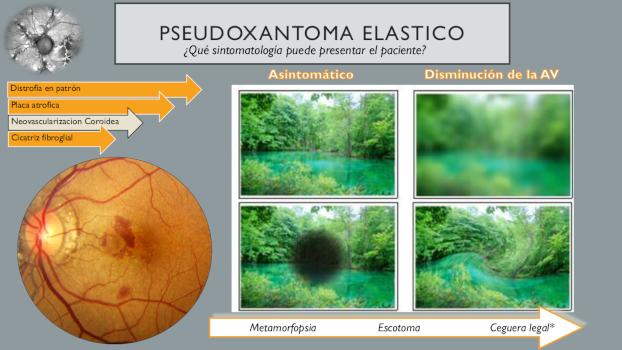 infografía pseudoxantoma elástico 15