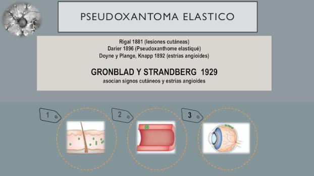 infografia 2 del pseudoxantoma