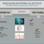 Pseudoxantoma elástico (PXE) o Síndrome de Gronblad-Stranberg: Infografías