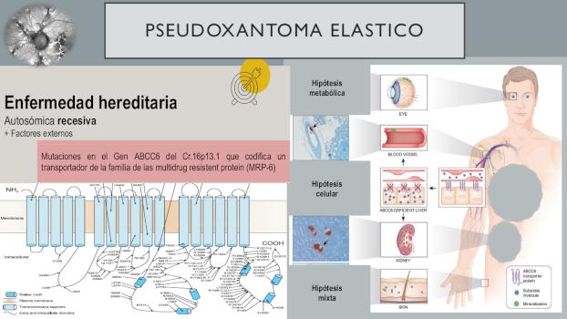 infografia 3 pseudoxantoma