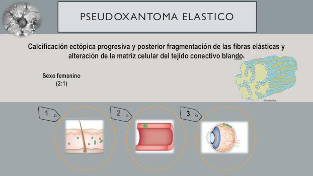 infografia 4 pseudoxantoma