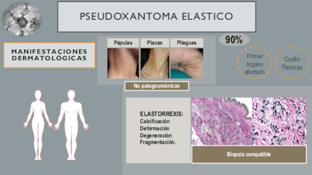 infografia 5 pseudoxantoma