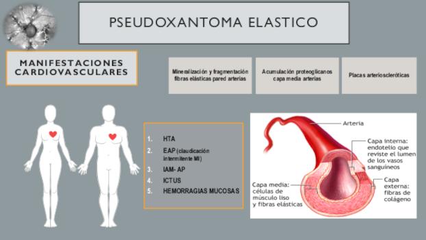 infografia 6 pseudoxantoma