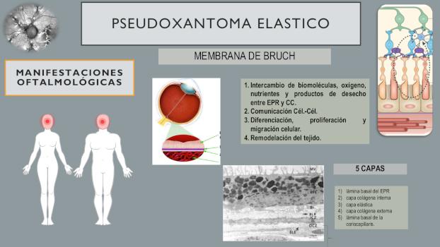 Infografía de PSEUDOXANTOMA ELASTICO 7