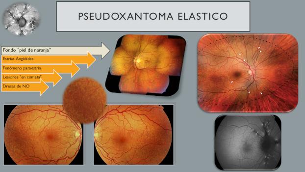 Infografía de PSEUDOXANTOMA ELASTICO 8