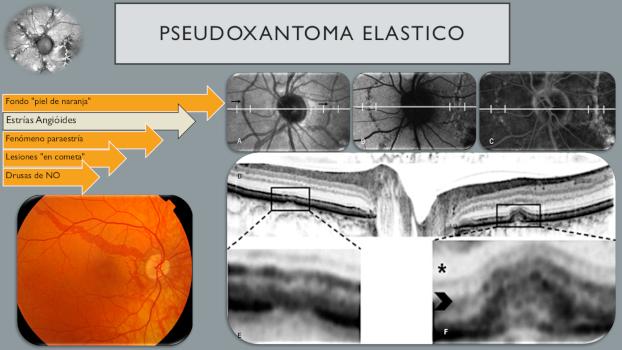 Infografía de PSEUDOXANTOMA ELASTICO 9