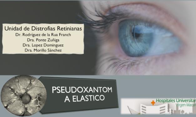 Pseudoxantoma elástico (PXE) o Síndrome de Gronblad-Stranberg