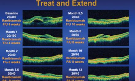 Decidir el mejor régimen de tratamiento para pacientes con DMAE húmeda