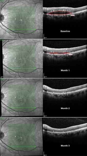 Un medicamento para Parkinson puede mejorar la visión en pacientes con DMAE