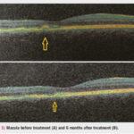 Fotobiomodulación: aprovechando el poder de la luz en la degeneración macular seca relacionada con la edad DMAE