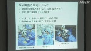 trasplante fotorreceptores en kobe