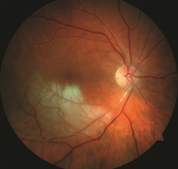 obstrucción de la rama de la arteria de la retina