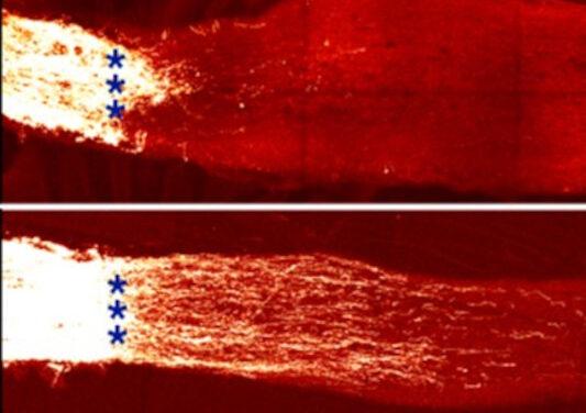 Restauran la visión retrocediendo el reloj epigenético