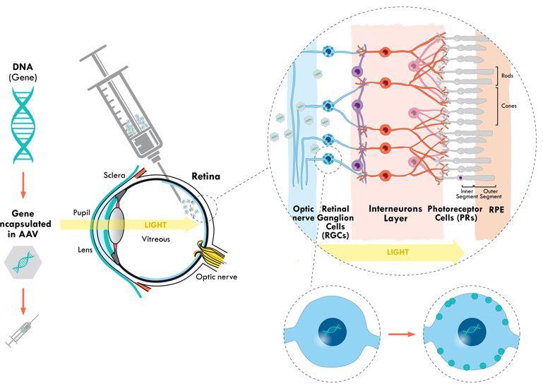 ¿Puede curar la ceguera la terapia génica?