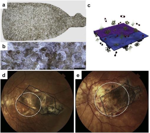 Trasplante de células madre de la retina: Conjugando seguridad y beneficios potenciales