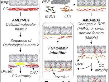 Modelo 3D para comprender la DMAE