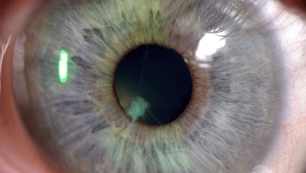 Asociación entre discapacidad visual y depresión en pacientes que acuden a consultas oftalmológicas