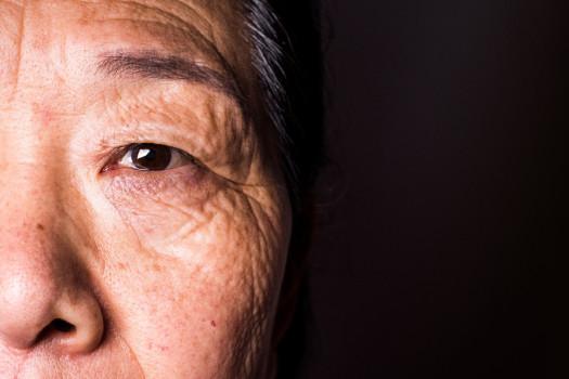 DMAE Degeneración macular asociada a la edad y genómica