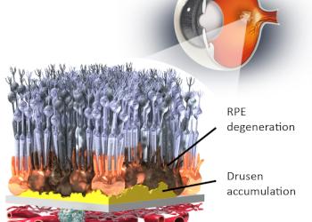 Datos clínicos de OpRegen demuestran mejoras en pacientes con Atrofia Geográfica DMAE