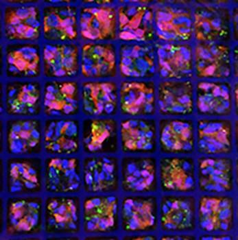 Una matriz con forma de cubitera siguiente paso para devolver la visión a retinas dañadas