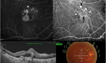 Vasculopatía coroidea polipoidea: actualización clínica