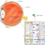 La terapia optogenética MCO de Nanoscope mejora la visión a 11 pacientes con Retinosis Pigmentaria