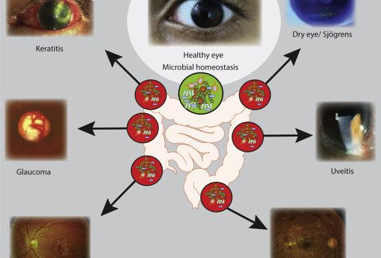 Influencia de la microbiota intestinal en las enfermedades oculares