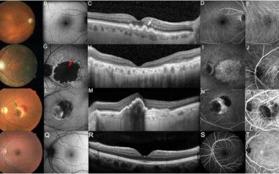 Se acelera la investigación en terapia génica para las enfermedades de la retina